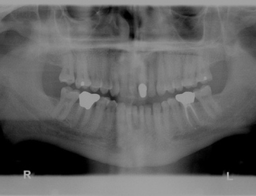 How Often Should You get Dental X-rays?